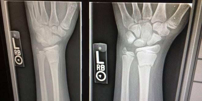 Geen radiologie en echografie meer in de polikliniek